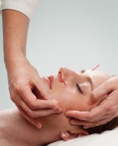 akupunktur_liten